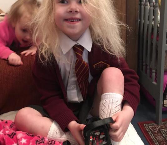 """Das gibt's wirklich: das """"Unkämmbare Haar""""-Syndrom! Und dieses Mädchen macht das Beste draus"""