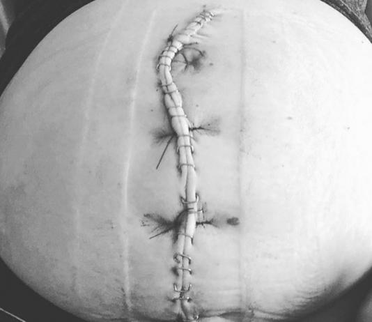Diese Kaiserschnittnarbe erzählt mehr als die Geschichte einer Geburt