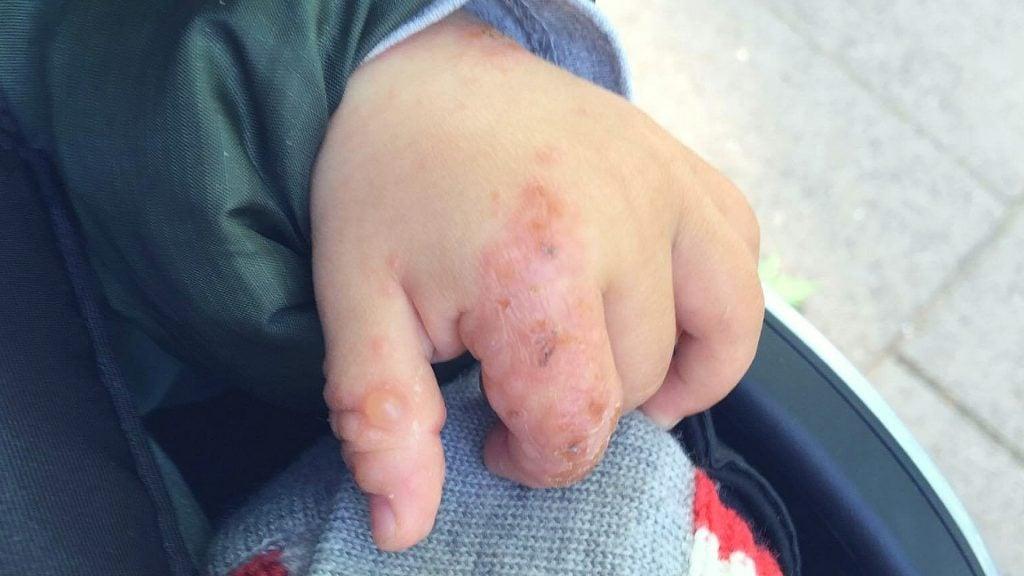 Hand Mund Fuß Krankheit Ungeborenes