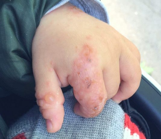 Hand-Mund-Fuß-Krankheitz beim Kind behandeln: Erkrankte Hand