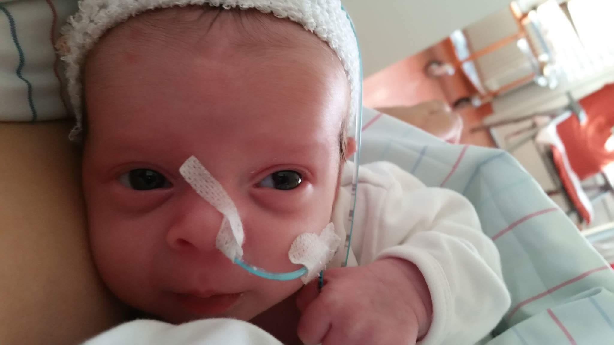 Herpes löste bei meinem Baby eine Gehirnentzündung aus