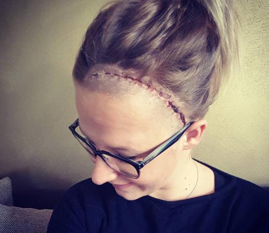 Ich hatte 5 Jahre ein Aneurysma im Kopf und war eine tickende Zeitbombe