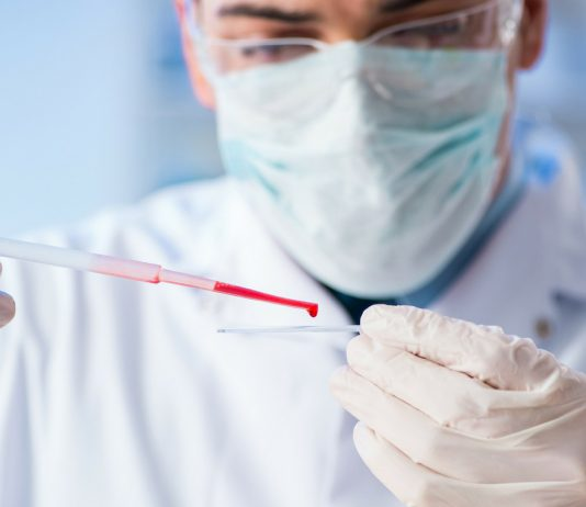 Bluttest im Labor