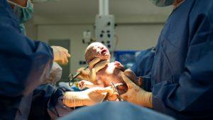 Überfüllte Kreißsäle: Baby beim Kaiserschnitt