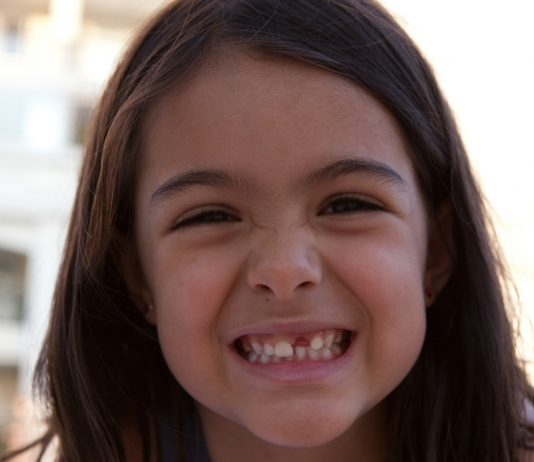 Mädchen mit Zahnlücke