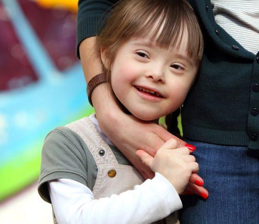 Kind mit Trisomie 21