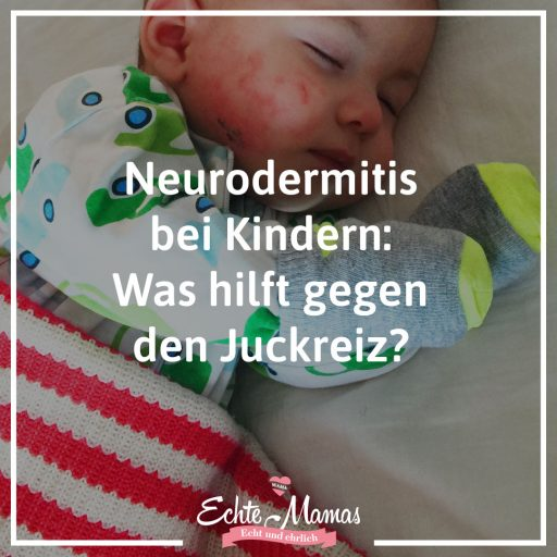 Neurodermitis bei Kinder