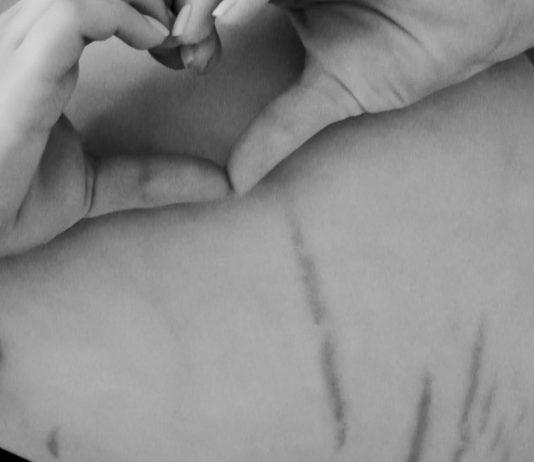 Dehnungsstreifen auf dem Babybauch einer Mama