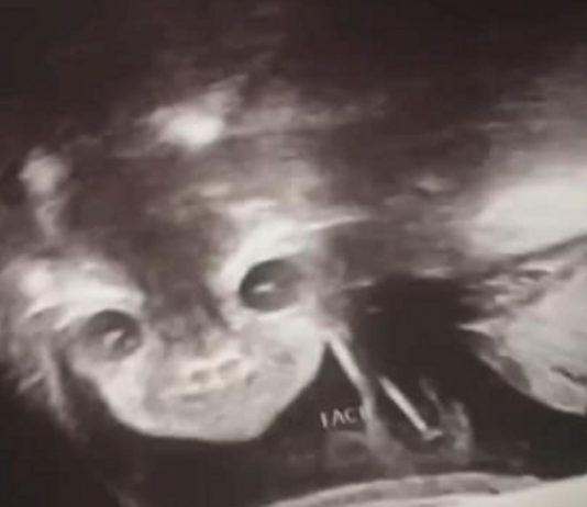 Ungewöhnliches Ultraschall-Bild eines kleinen Mädchens