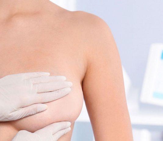 Brustkrebsvorsorge beim Frauenarzt