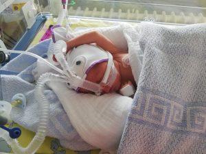 Frühchen im Krankenhaus - Aileens Zwillinge kamen zu früh zur Welt
