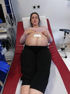Darmverschluss in der Schwangerschaft: Mama Aileen nach der OP