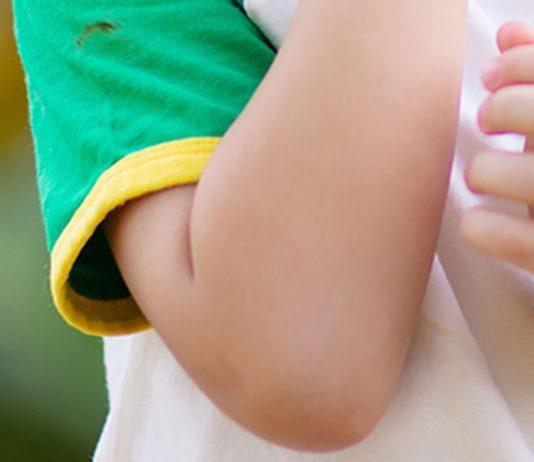 Reibeisenhaut Oberarme Kind Tipps