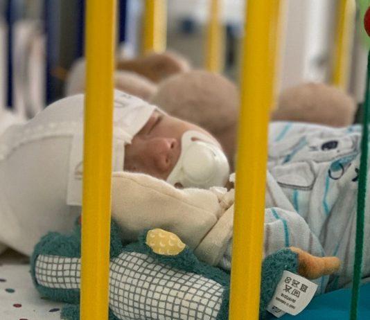 Der kleine Lian kam mit offenem Bauch zur Welt.