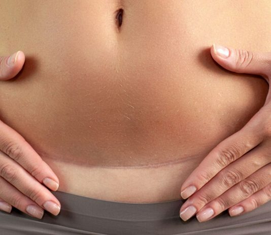 Schwanger zu werden nach einem Kaiserschnitt ist kein Problem - wenn du ein paar Dinge beachtest.