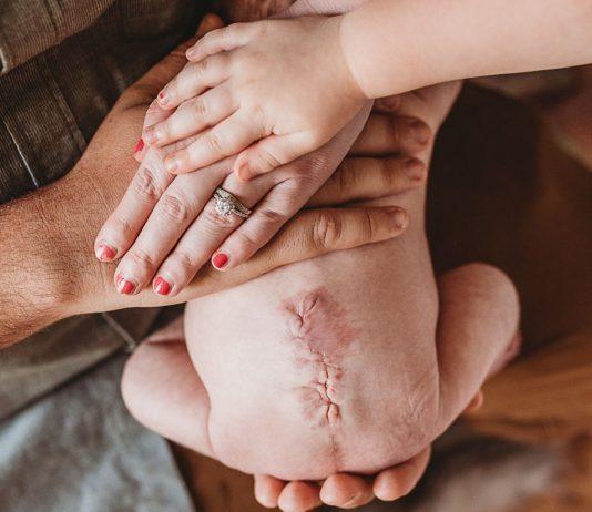 """Diagnose """"Offener Rücken"""": Eines von 1.000 Babys ist betroffen."""