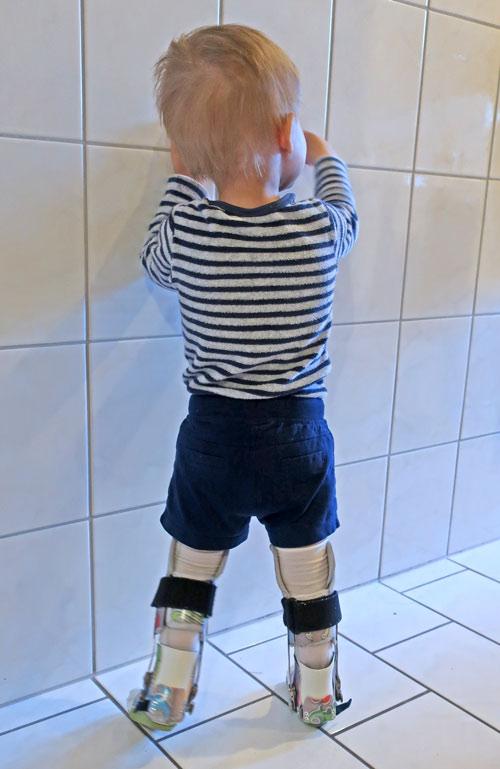 Wie für Karl auch für viele andere Kinder mit offenem Rücken Alltag: das Laufen mit Orthesen.