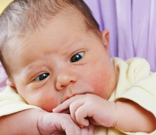 Schielen beim Baby kann niedlich aussehen, ist aber nicht immer harmlos.