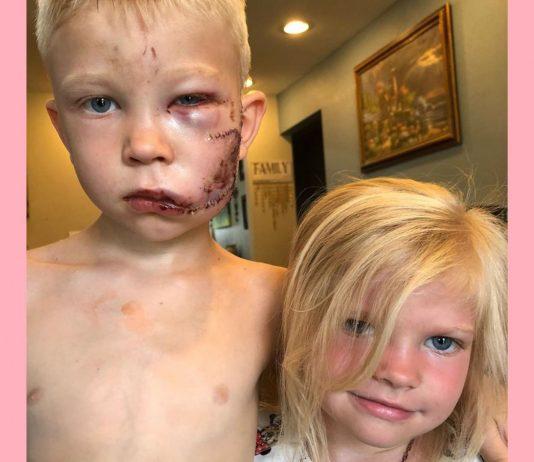 Der kleine Bridger schützte seine Schwester vor einem Hund.