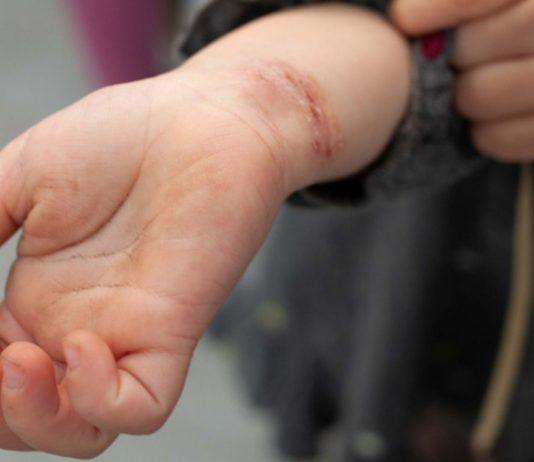 Lena (3 Jahre) hat sich ihr Handgelenk blutig gekratzt.