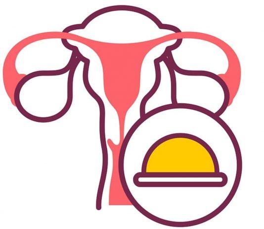 Die Portiokappe saugt sich am Muttermund fest, damit kein Sperma zur Gebärmutter gelangt.