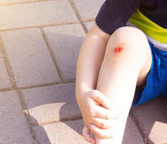 Wunden und Schrammen heilen am besten mit Pflaster