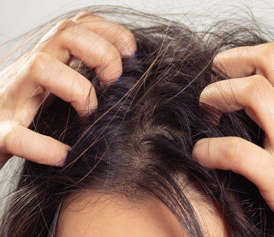Kopfläuse können gefährlich werden, wenn man nichts gegen sie unternimmt.
